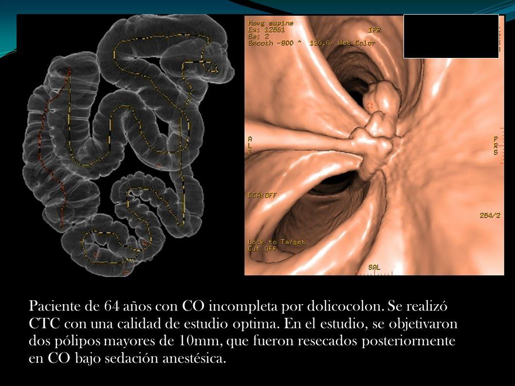 Paciente de 64 años con CO incompleta por dolicocolon