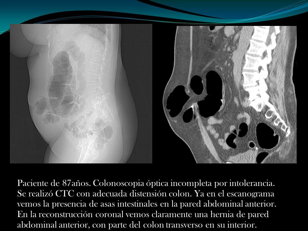 Paciente de 87años. Colonoscopia óptica incompleta por intolerancia