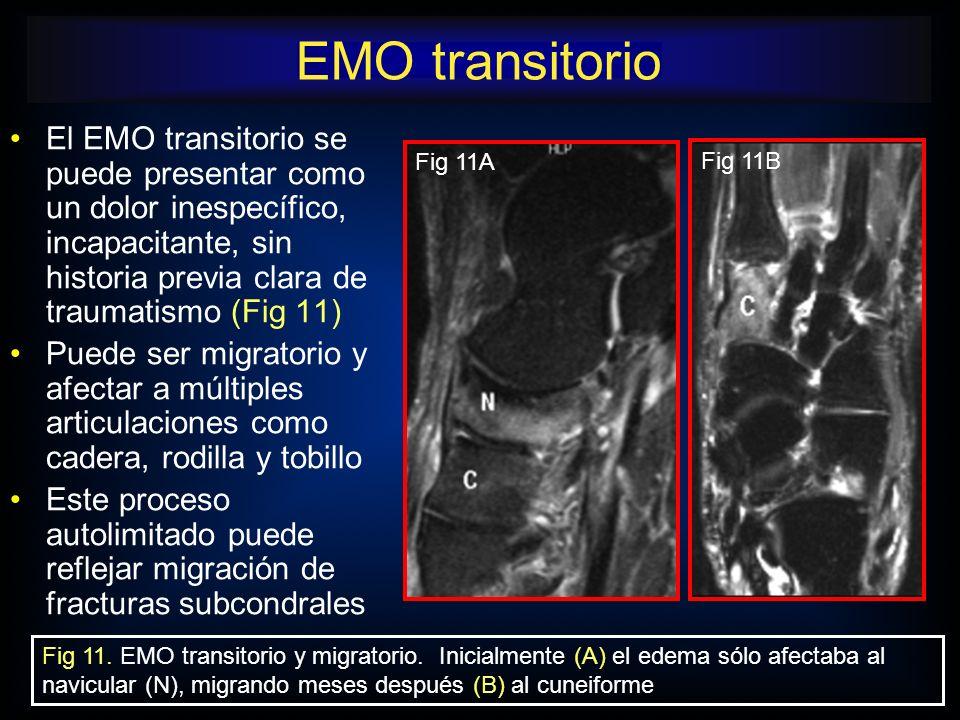 EMO transitorio El EMO transitorio se puede presentar como un dolor inespecífico, incapacitante, sin historia previa clara de traumatismo (Fig 11)