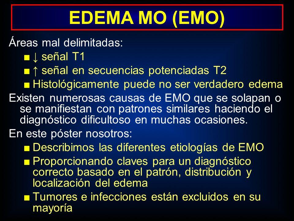 EDEMA MO (EMO) Áreas mal delimitadas: ↓ señal T1