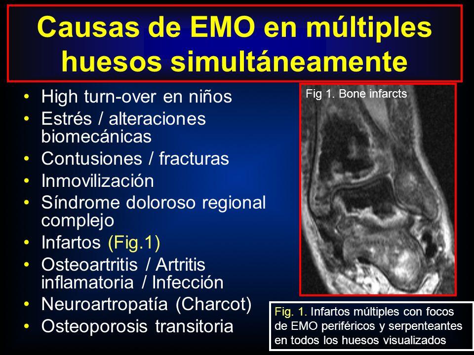 Causas de EMO en múltiples huesos simultáneamente