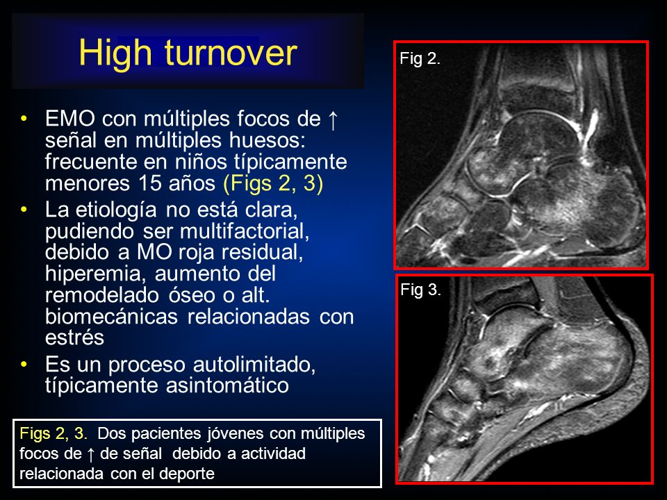 High turnover Figs 2, 3. Dos pacientes jóvenes con múltiples focos de ↑ de señal debido a actividad relacionada con el deporte.