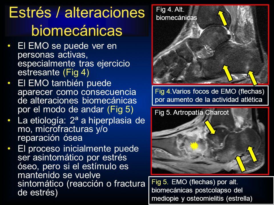 Estrés / alteraciones biomecánicas