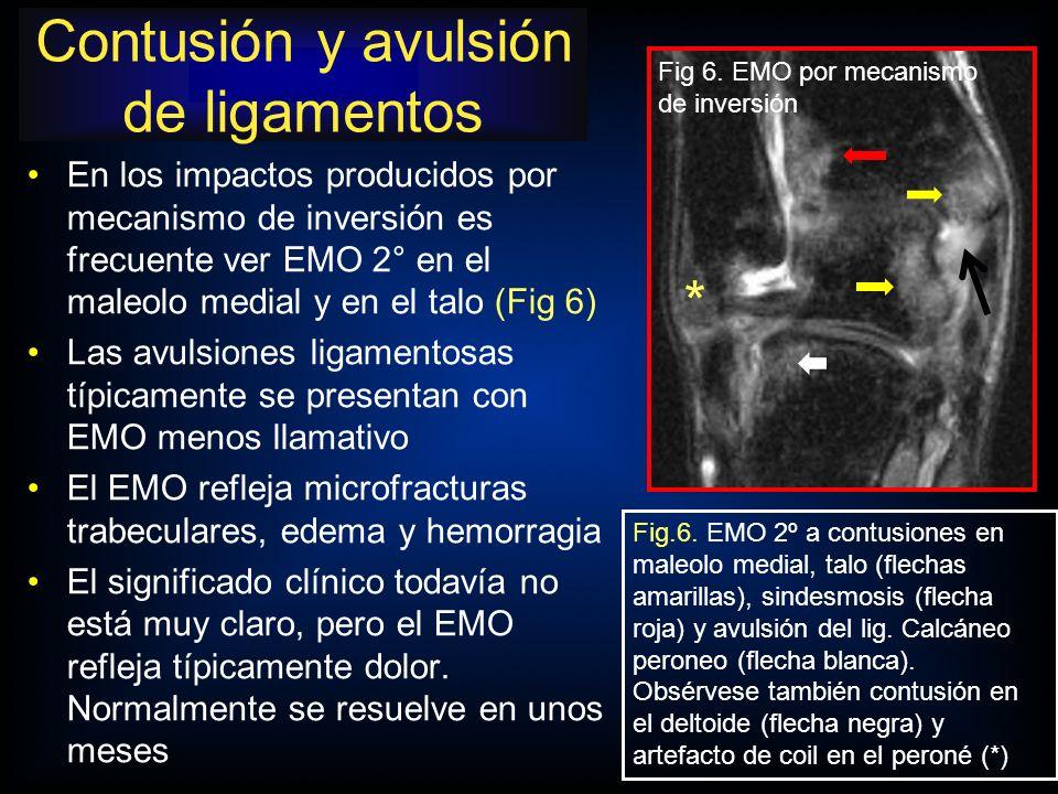 Contusión y avulsión de ligamentos