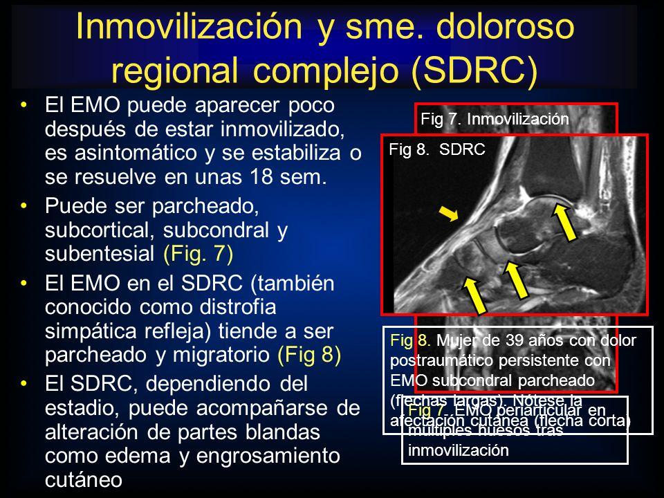 Inmovilización y sme. doloroso regional complejo (SDRC)