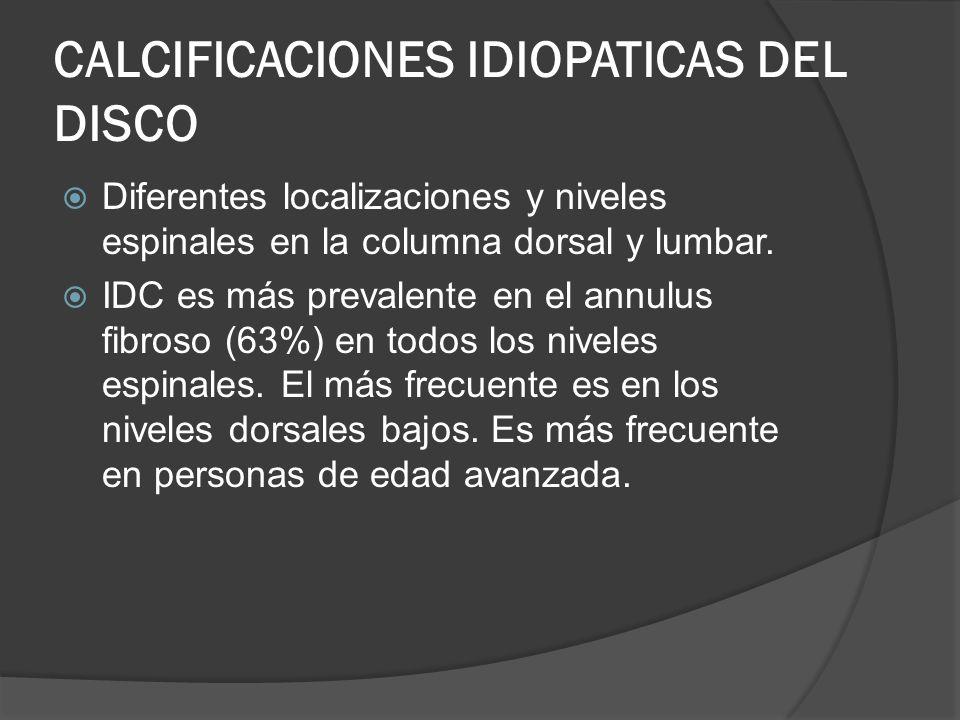CALCIFICACIONES IDIOPATICAS DEL DISCO