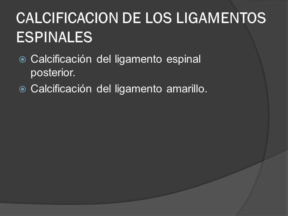 CALCIFICACION DE LOS LIGAMENTOS ESPINALES