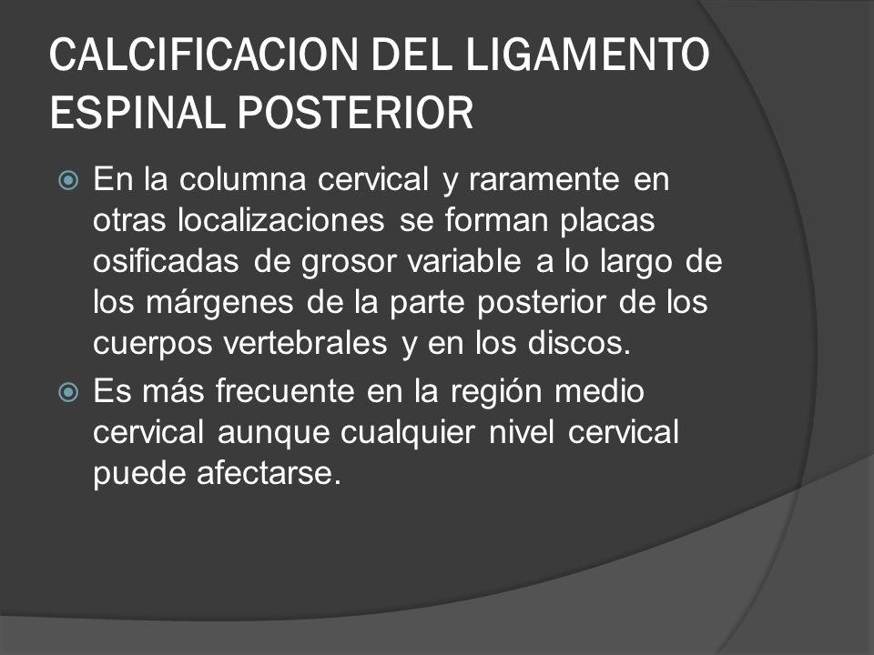 CALCIFICACION DEL LIGAMENTO ESPINAL POSTERIOR