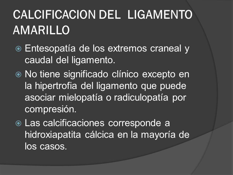 CALCIFICACION DEL LIGAMENTO AMARILLO