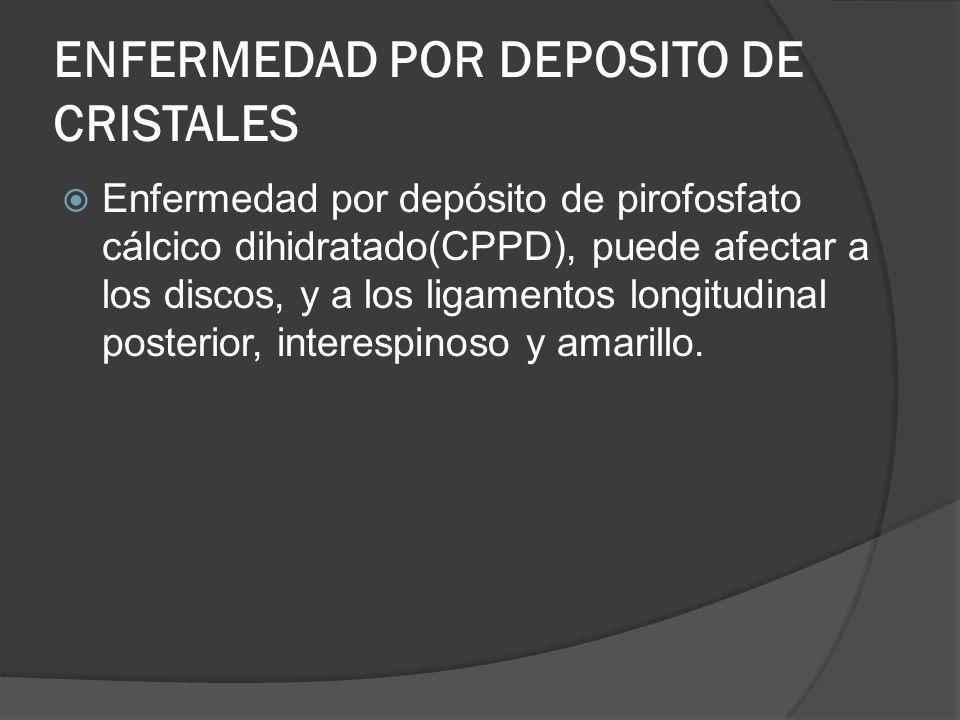 ENFERMEDAD POR DEPOSITO DE CRISTALES