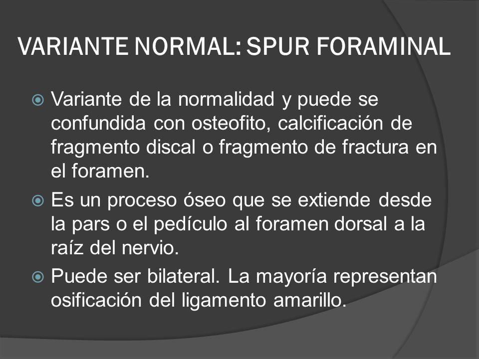 VARIANTE NORMAL: SPUR FORAMINAL