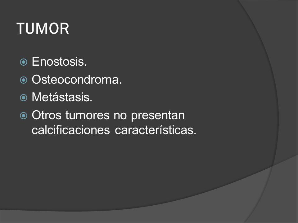 TUMOR Enostosis. Osteocondroma. Metástasis.