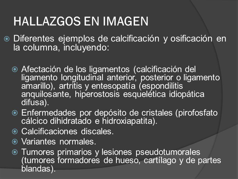 HALLAZGOS EN IMAGENDiferentes ejemplos de calcificación y osificación en la columna, incluyendo: