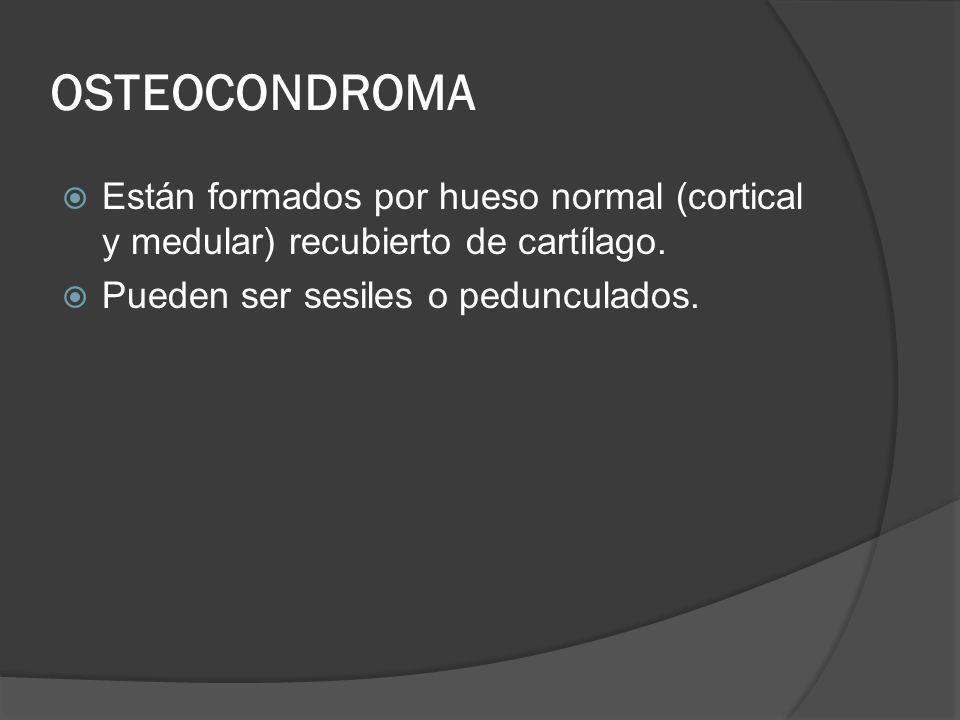 OSTEOCONDROMA Están formados por hueso normal (cortical y medular) recubierto de cartílago.