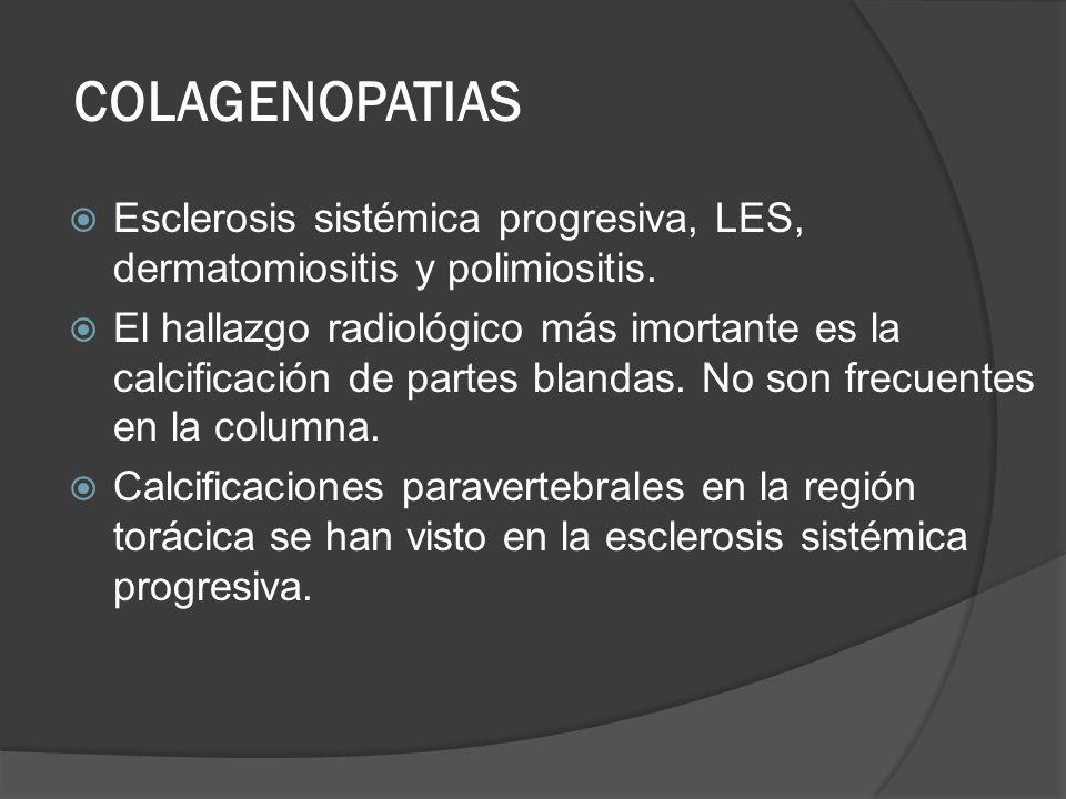 COLAGENOPATIAS Esclerosis sistémica progresiva, LES, dermatomiositis y polimiositis.