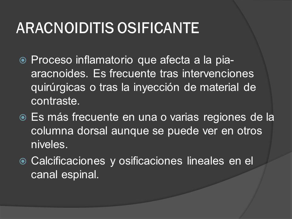 ARACNOIDITIS OSIFICANTE