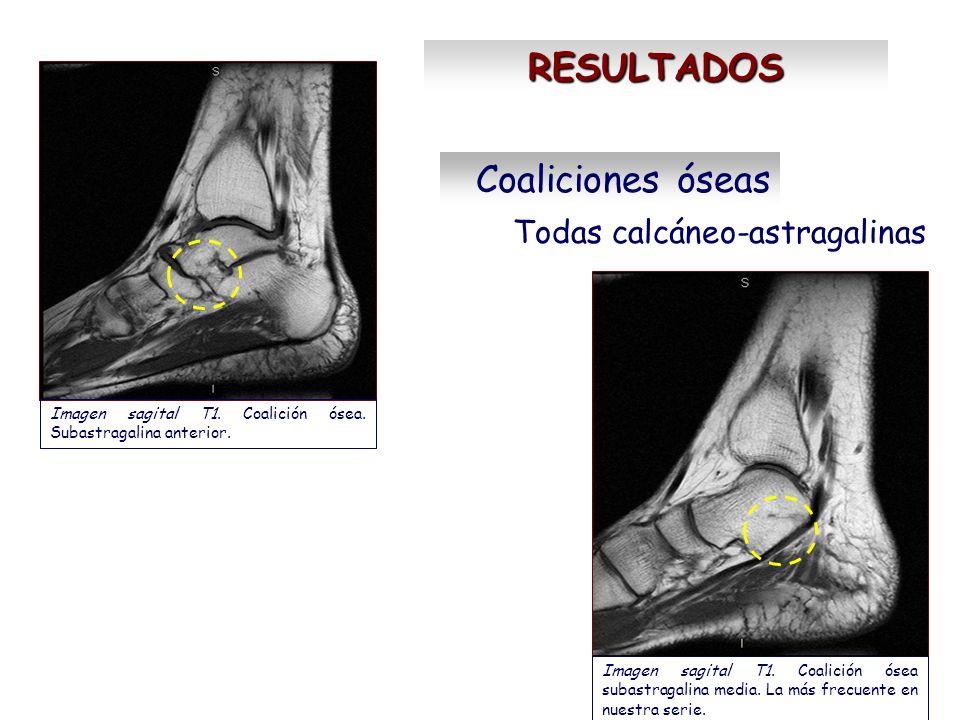 RESULTADOS Coaliciones óseas Todas calcáneo-astragalinas