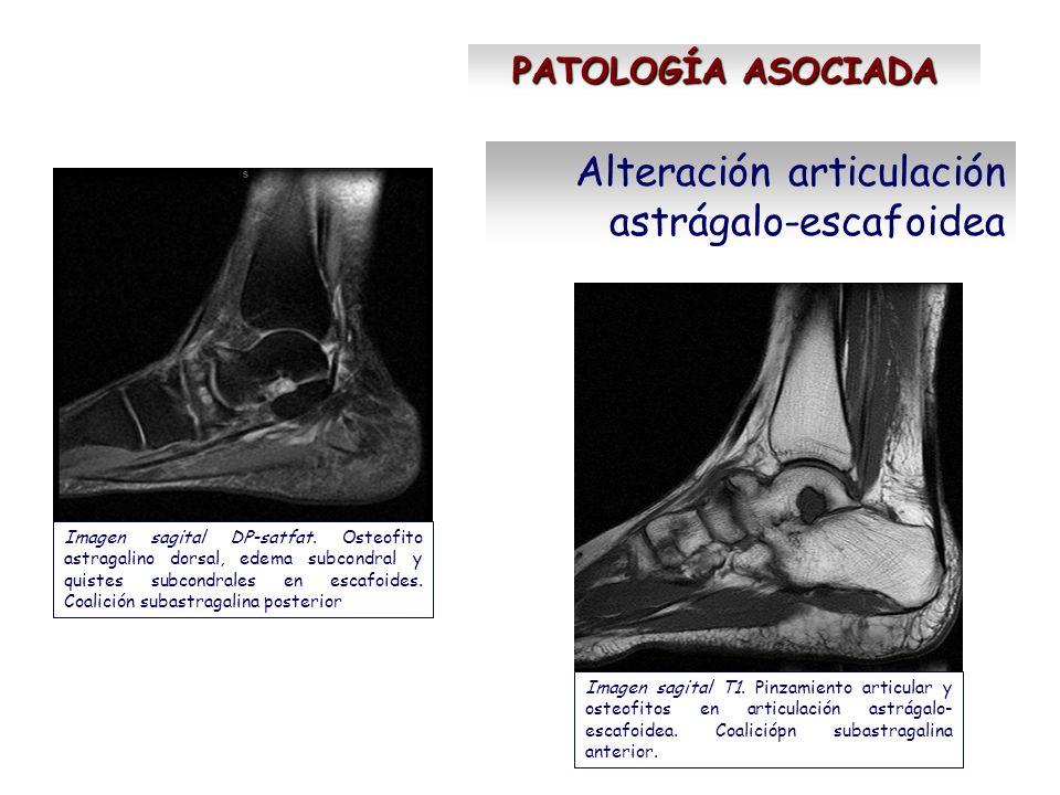 Alteración articulación astrágalo-escafoidea