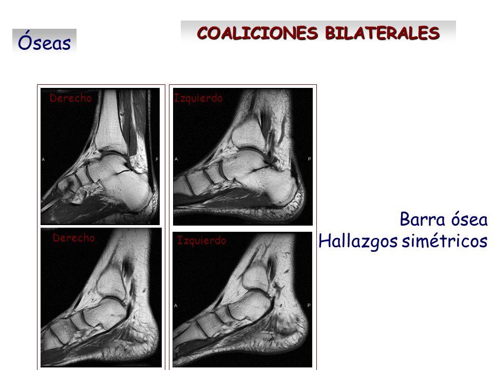 COALICIONES BILATERALES