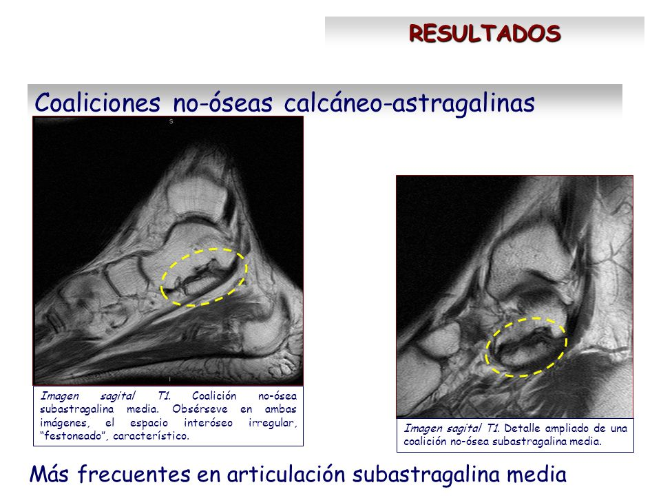 Coaliciones no-óseas calcáneo-astragalinas