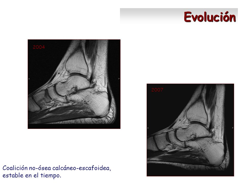 Evolución Coalición no-ósea calcáneo-escafoidea, estable en el tiempo.