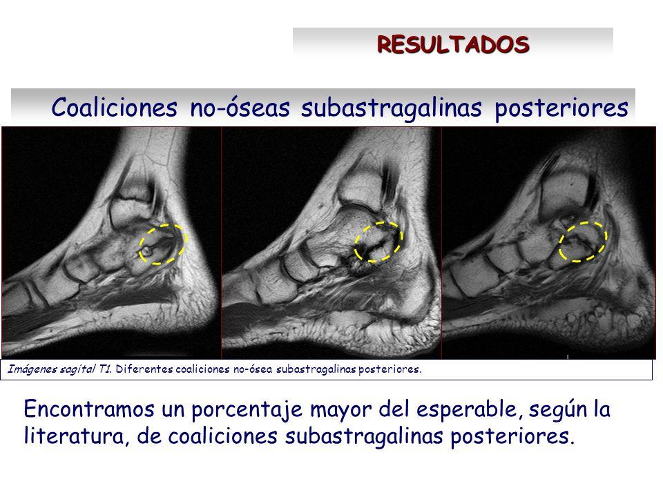 Coaliciones no-óseas subastragalinas posteriores