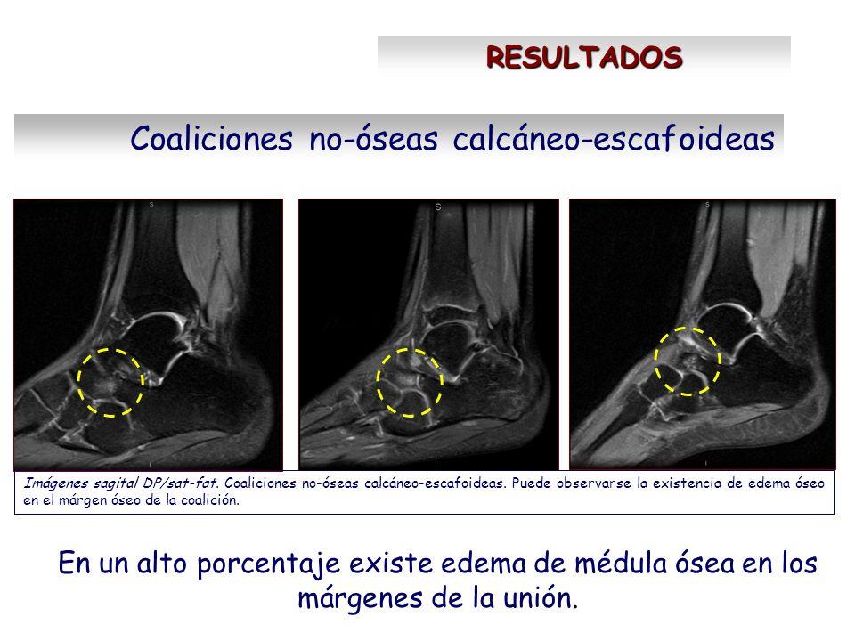 Coaliciones no-óseas calcáneo-escafoideas