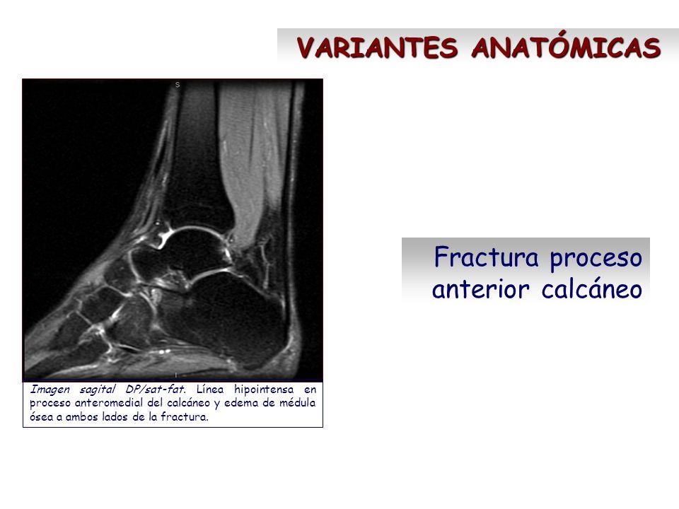 Fractura proceso anterior calcáneo