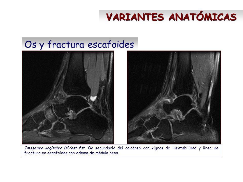 Os y fractura escafoides