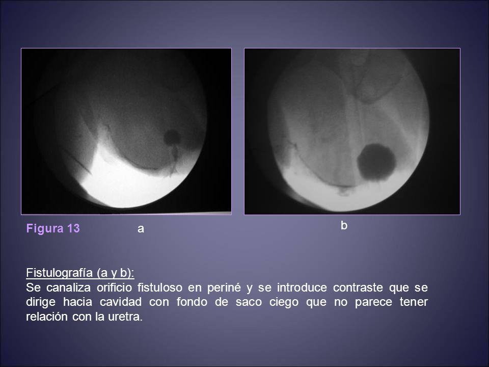 Figura 13 Fistulografía (a y b):