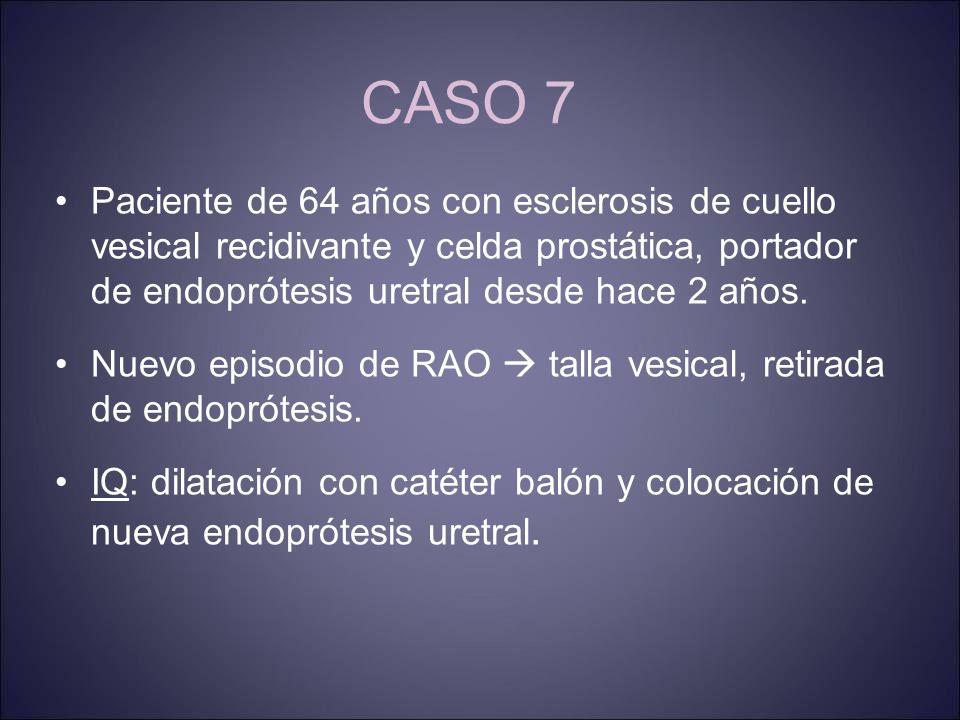 CASO 7 Paciente de 64 años con esclerosis de cuello vesical recidivante y celda prostática, portador de endoprótesis uretral desde hace 2 años.