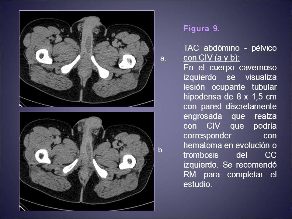 TAC abdómino - pélvico con CIV (a y b):