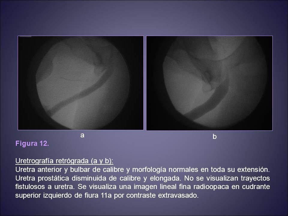 a b. Figura 12. Uretrografía retrógrada (a y b):