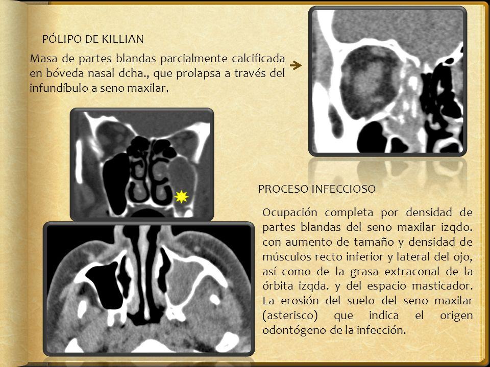 PÓLIPO DE KILLIAN Masa de partes blandas parcialmente calcificada en bóveda nasal dcha., que prolapsa a través del infundíbulo a seno maxilar.