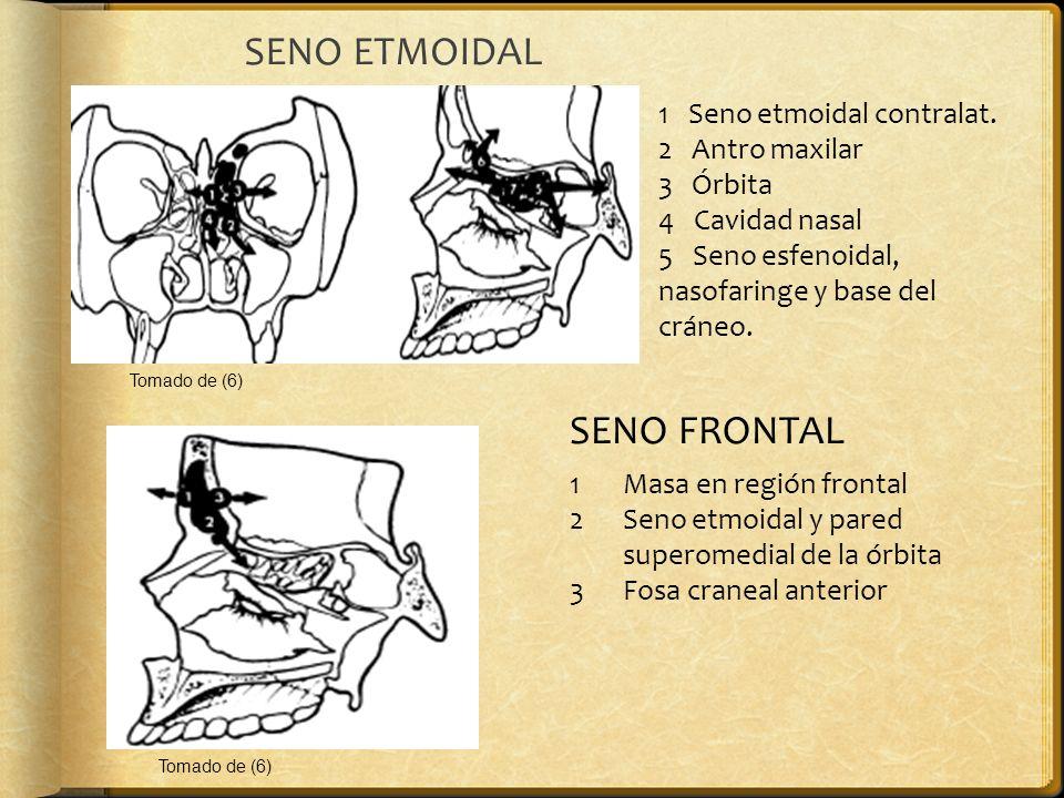 SENO ETMOIDAL SENO FRONTAL 1 Seno etmoidal contralat. 2 Antro maxilar