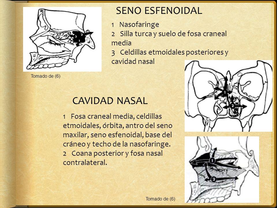 SENO ESFENOIDAL CAVIDAD NASAL 1 Nasofaringe
