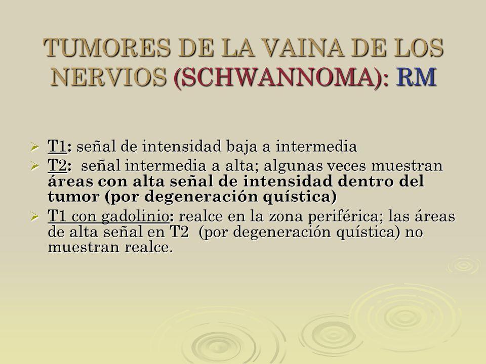 TUMORES DE LA VAINA DE LOS NERVIOS (SCHWANNOMA): RM