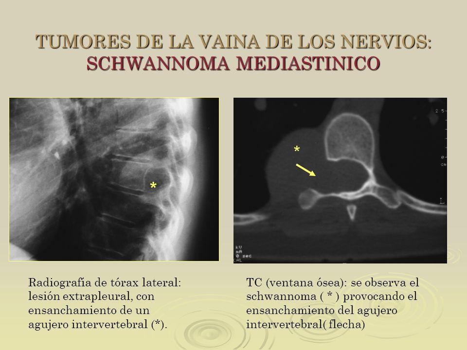 TUMORES DE LA VAINA DE LOS NERVIOS: SCHWANNOMA MEDIASTINICO