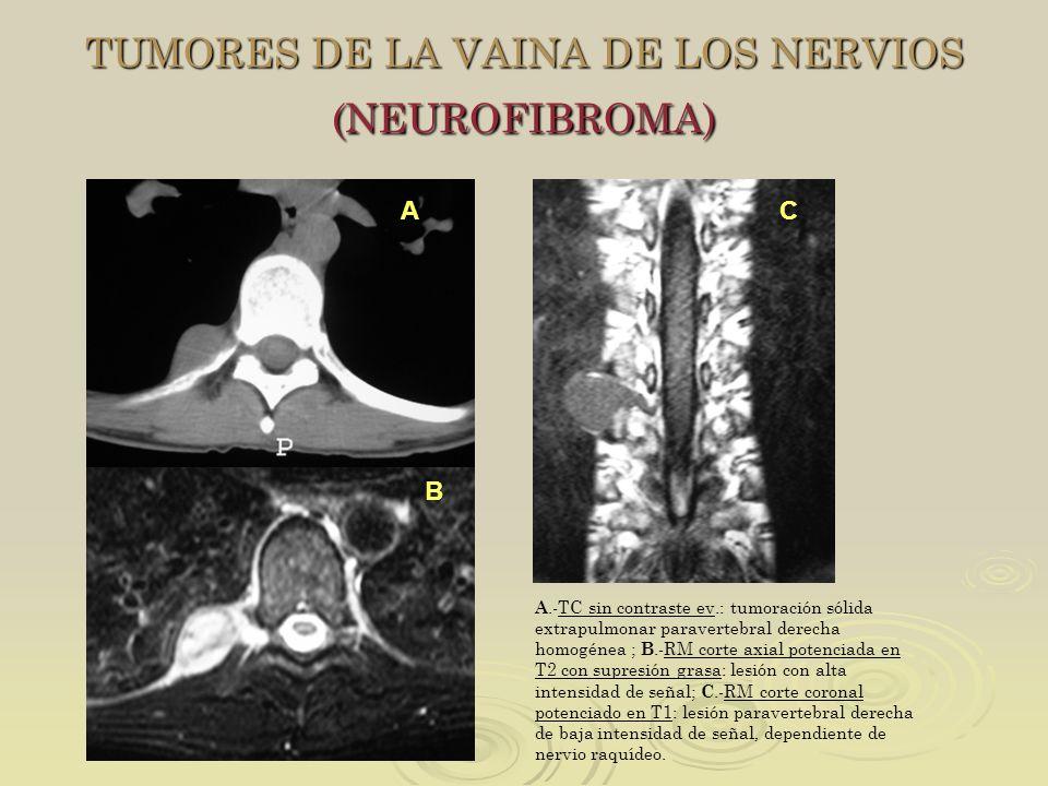 TUMORES DE LA VAINA DE LOS NERVIOS (NEUROFIBROMA)