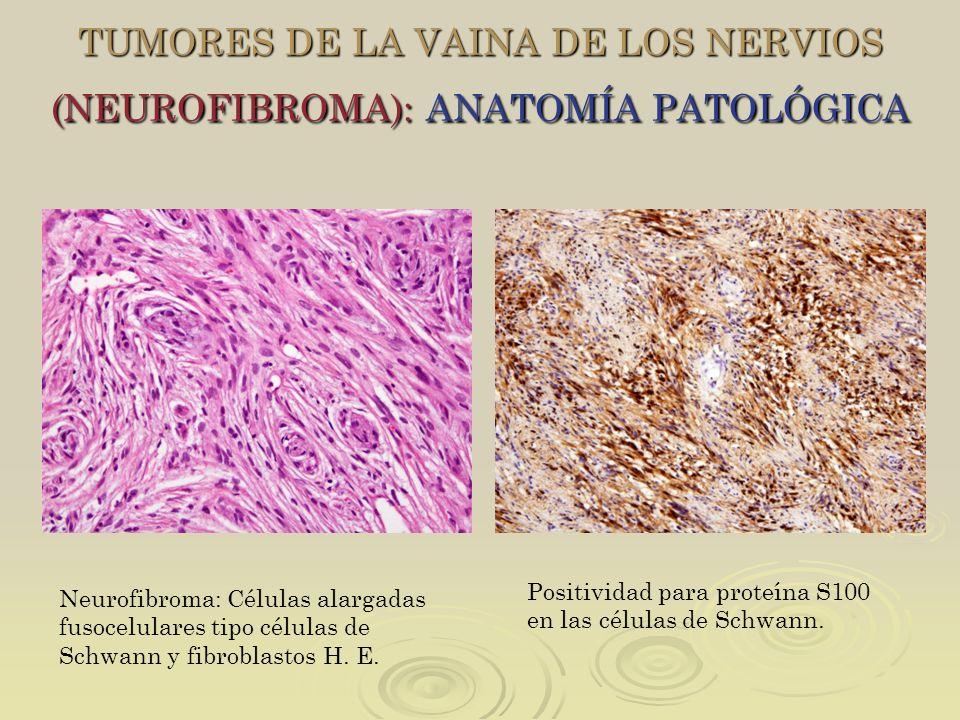 TUMORES DE LA VAINA DE LOS NERVIOS (NEUROFIBROMA): ANATOMÍA PATOLÓGICA