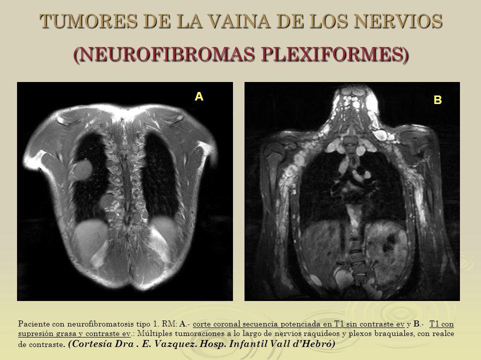 TUMORES DE LA VAINA DE LOS NERVIOS (NEUROFIBROMAS PLEXIFORMES)