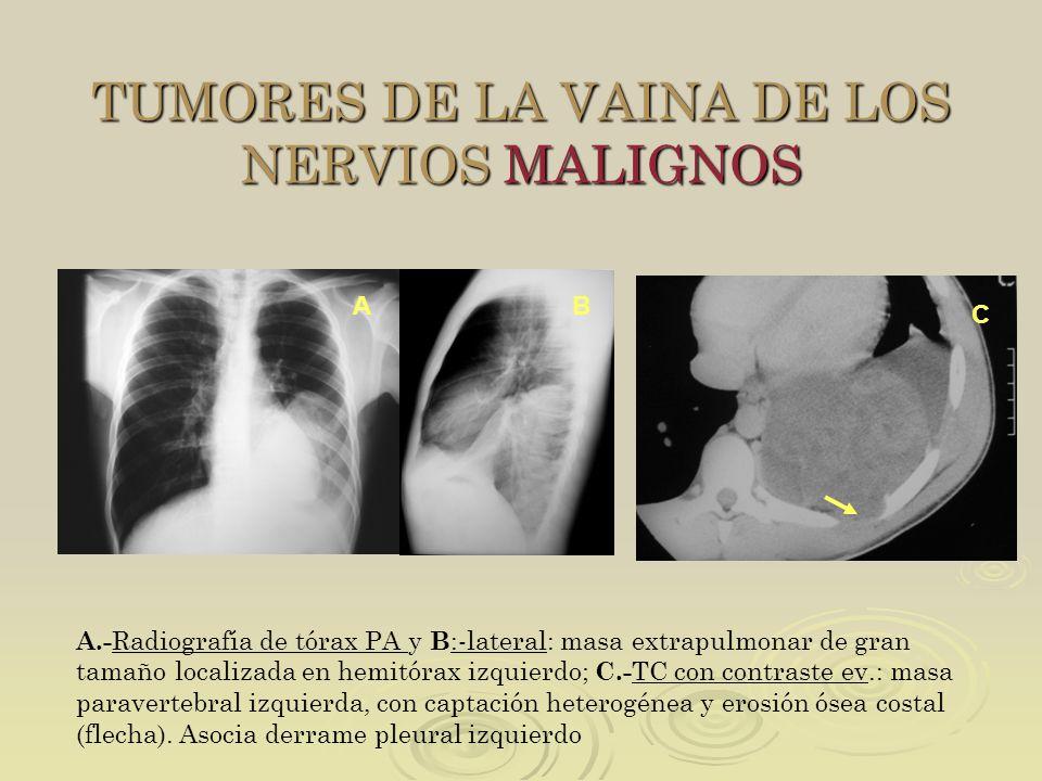 TUMORES DE LA VAINA DE LOS NERVIOS MALIGNOS
