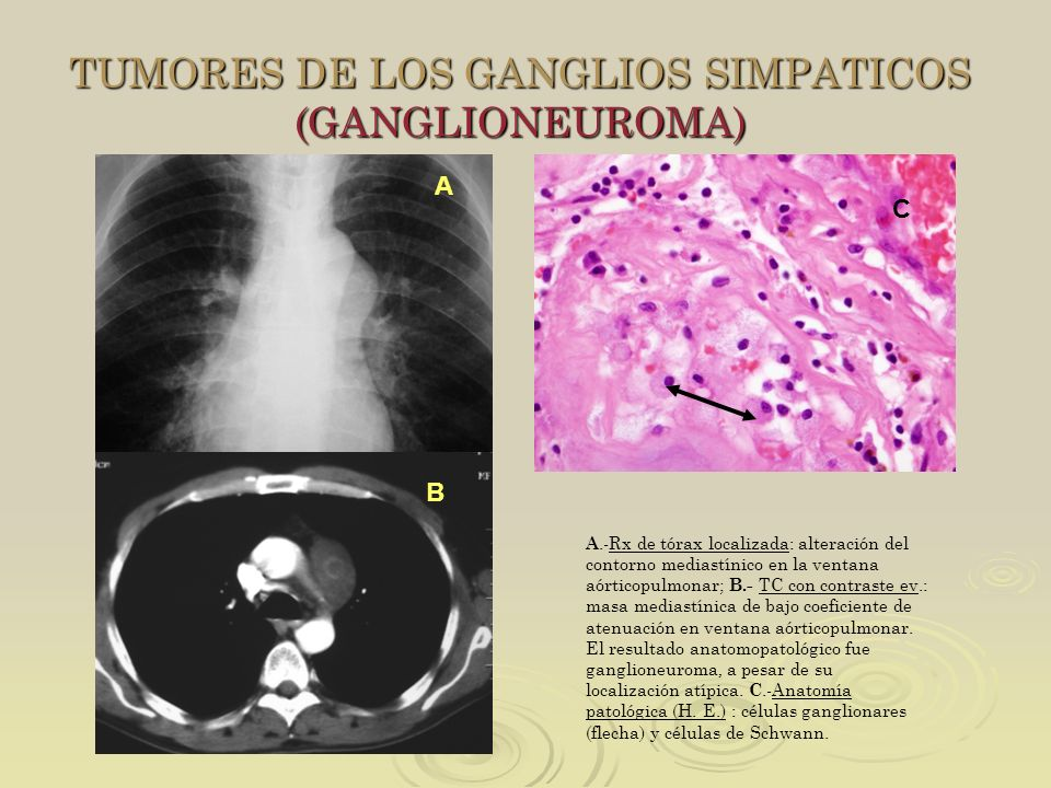 TUMORES DE LOS GANGLIOS SIMPATICOS (GANGLIONEUROMA)