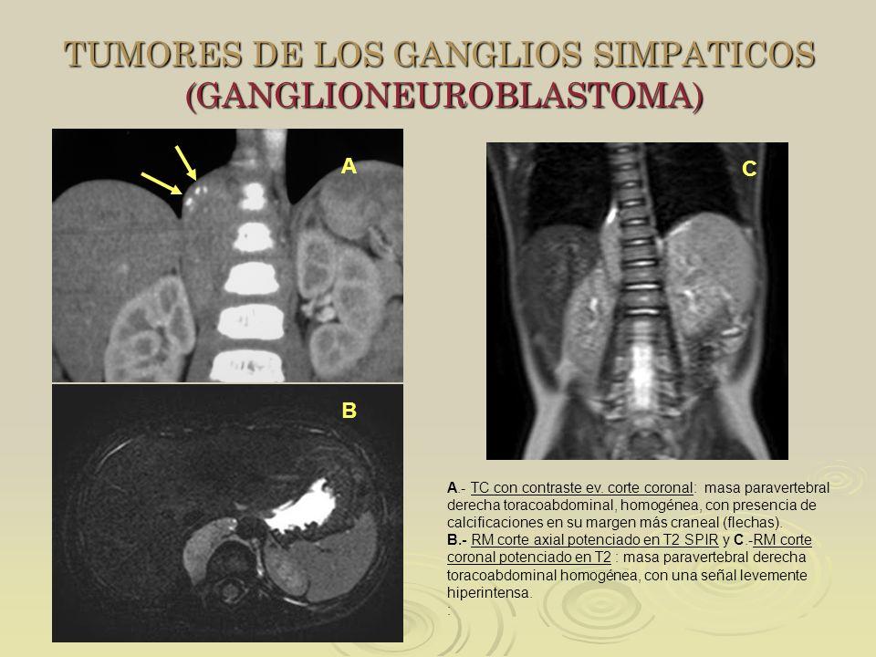 TUMORES DE LOS GANGLIOS SIMPATICOS (GANGLIONEUROBLASTOMA)