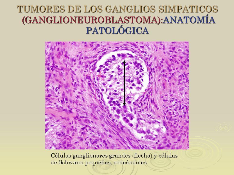 TUMORES DE LOS GANGLIOS SIMPATICOS (GANGLIONEUROBLASTOMA):ANATOMÍA PATOLÓGICA
