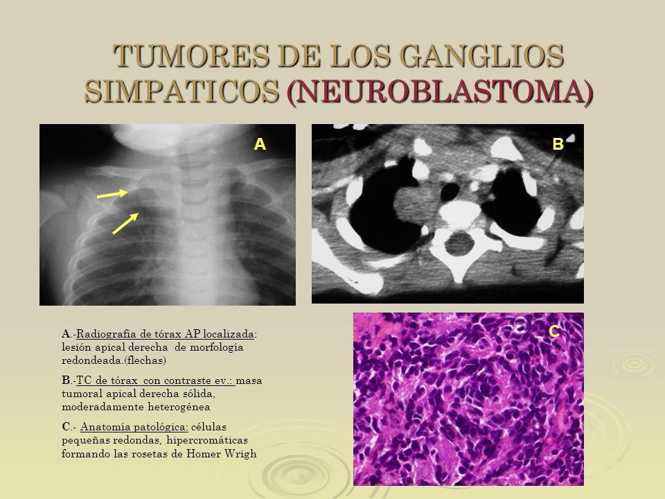 TUMORES DE LOS GANGLIOS SIMPATICOS (NEUROBLASTOMA)