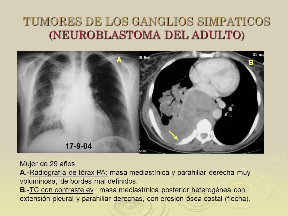 TUMORES DE LOS GANGLIOS SIMPATICOS (NEUROBLASTOMA DEL ADULTO)