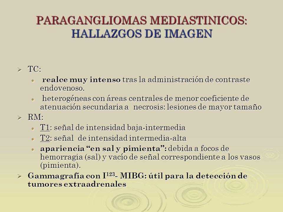 PARAGANGLIOMAS MEDIASTINICOS: HALLAZGOS DE IMAGEN