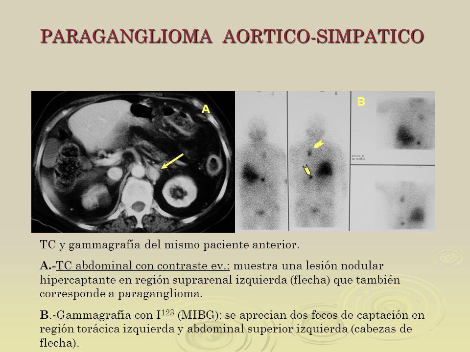 PARAGANGLIOMA AORTICO-SIMPATICO