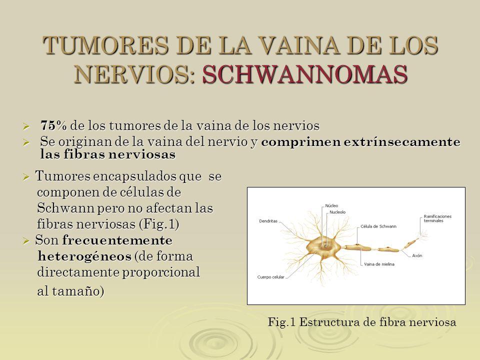 TUMORES DE LA VAINA DE LOS NERVIOS: SCHWANNOMAS